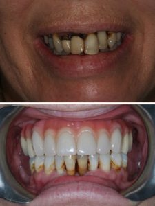 Replacement of failed upper teeth with full arch implant retained bridge