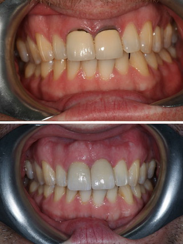 Replacement of failed left front tooth with implant retained crown