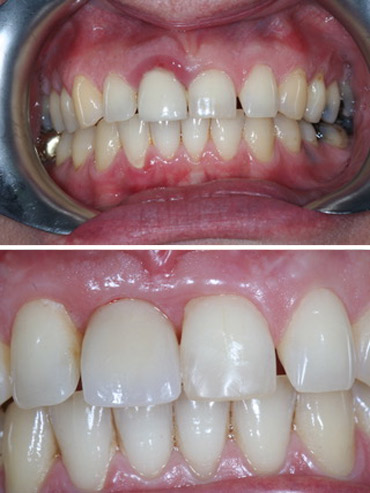 Replacement of failed right front tooth with implant retained crown